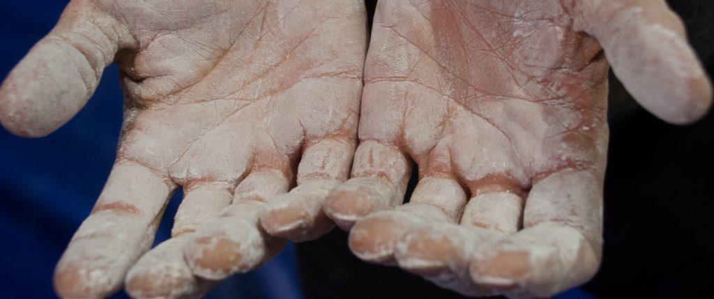 Gli infortuni della mano
